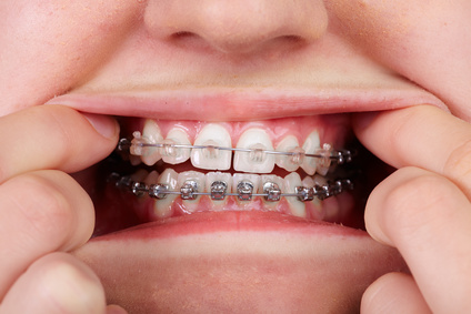 What to know about braces invisalign retainers sol dental teeth with orthodontic brackets dental health care solutioingenieria Images