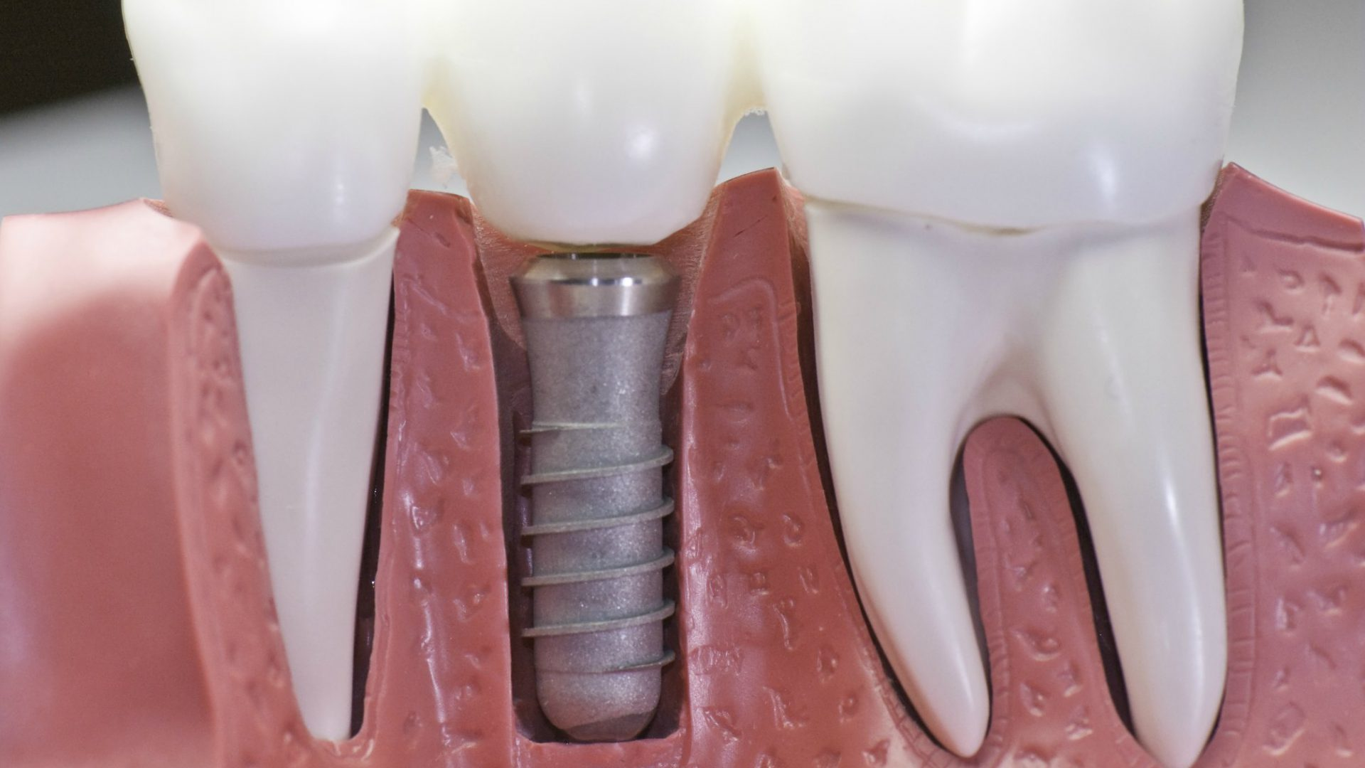 dental_implants